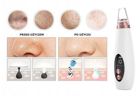 Zestaw urządzeń do kompleksowego oczyszczania twarzy